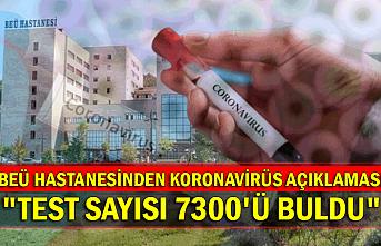 """BEÜ HASTANESİNDEN KORONAVİRÜS AÇIKLAMASI """"TEST SAYISI 7300'Ü BULDU"""""""