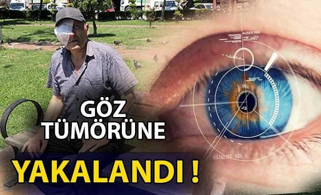 Göz tümörüne yakalanan orman işçisinin yardım feryadı