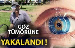 Göz tümörüne yakalanan orman işçisinin yardım...